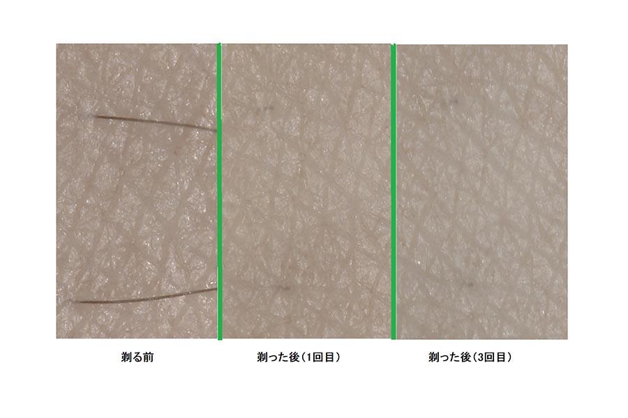 カミソリでのシェービングを継続した肌(マイクロスコープで撮影)【写真提供:シック・ジャパン】