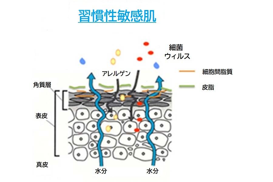 習慣性敏感肌の肌構造。細胞間脂質が少ないため、水分が出ていきやすく、ウイルスやアレルゲンが入り込みやすい【画像提供:ナノエッグ】